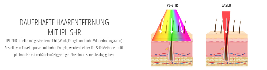 IPL-SHR vergleich mit Laser